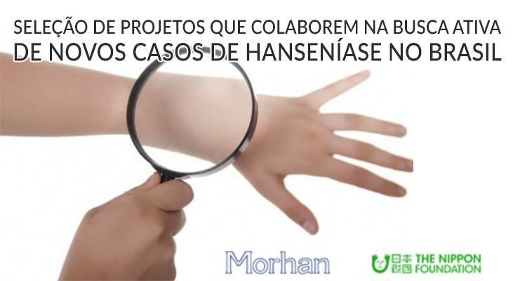 Seleção de Projetos que colaborem na busca  ativa de novos casos da  HANSENÍASE no Brasil