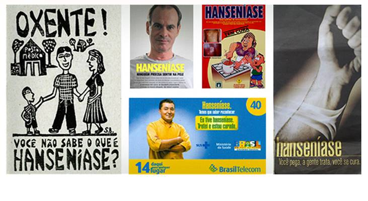 Materiais educativos sobre hanseníase têm acesso aberto
